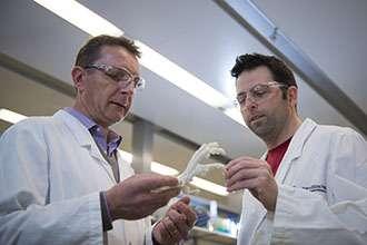 Inflammatory link discovered between arthritis and heart valve disease