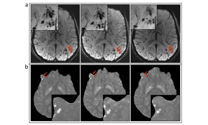 MRI improves diagnosis of microbleeding after brain injury in military personnel