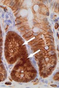 Prioritising the gene faults behind bowel cancer