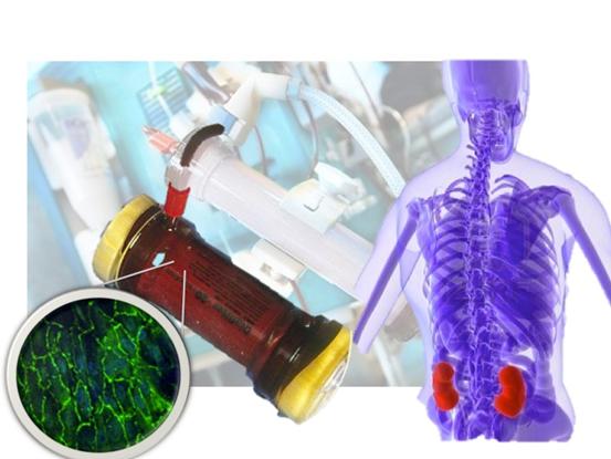 Researchers create a 'living kidney membrane'