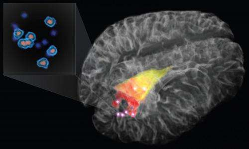 Revolutionary new probe zooms in on cancer cells