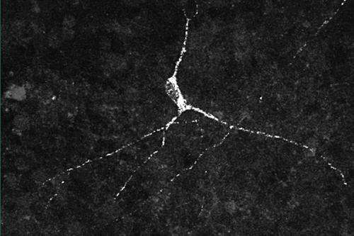 Scientists produce hypothalamic neurons, which can help target a range of conditions
