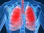 Six-minute walk test predictive for pulmonary hypertension
