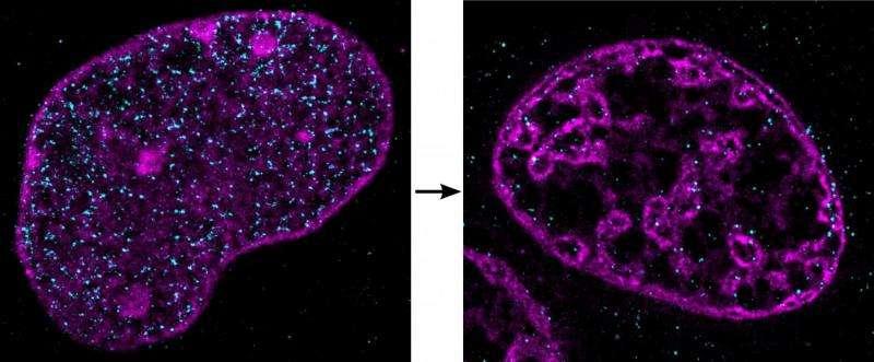 Strangled cells condense their DNA
