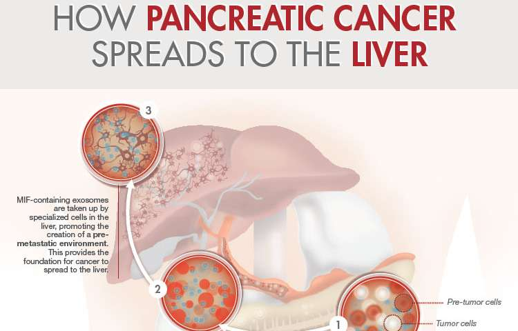 Study discovers how pancreatic cancer spreads to the liver
