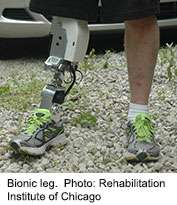 Technology offers hope of better bionic legs