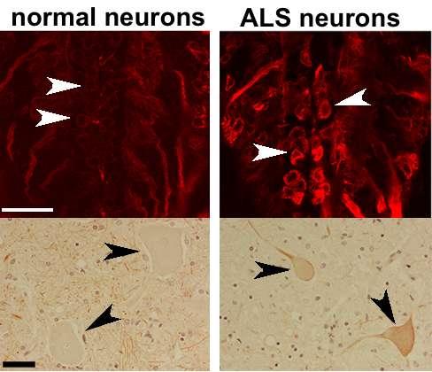 The molecular biology behind ALS