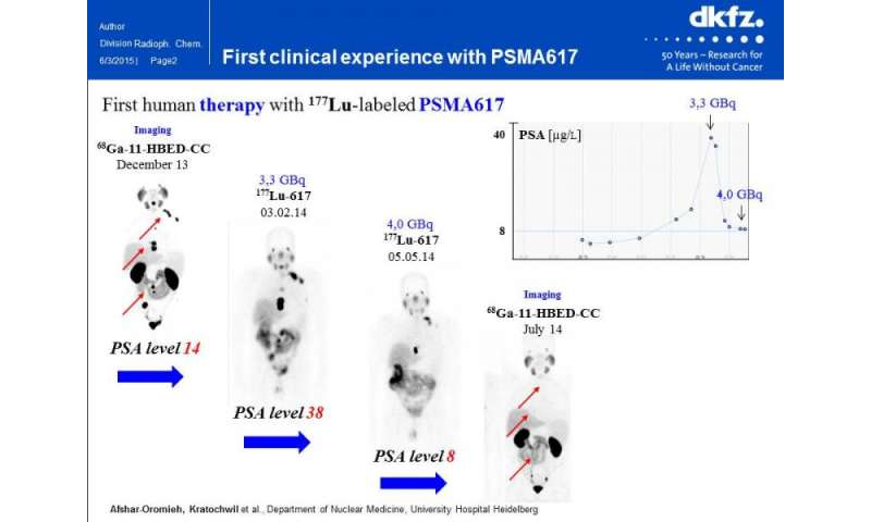 Theranostic drug personalizes prostate cancer imaging and therapy