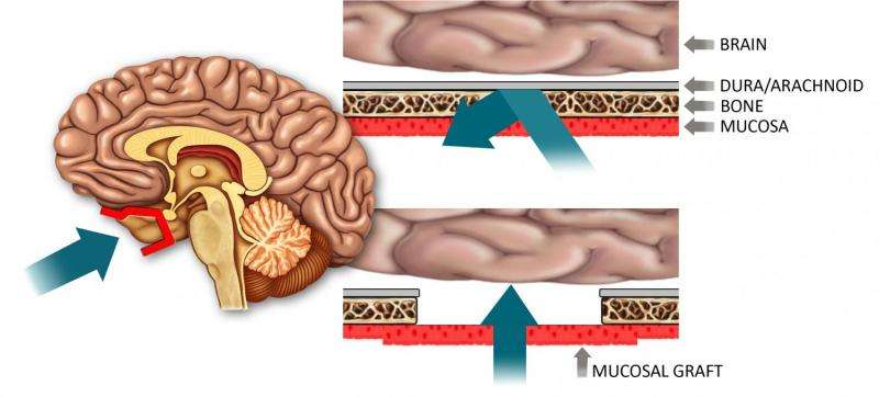 Researchers develop drug delivery technique to bypass blood-brain barrier