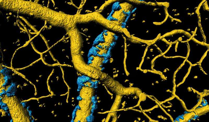 Neuroscientists gain insight into cause of Alzheimer's symptoms