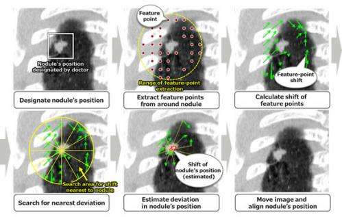 Fujitsu develops technology to accurately align nodules within CT scan images taken over time