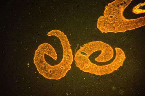 Genetic discovery may offer new avenue of attack against schistosomiasis