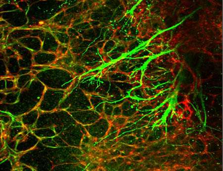 Human stem cell model reveals molecular cues critical to neurovascular unit formation
