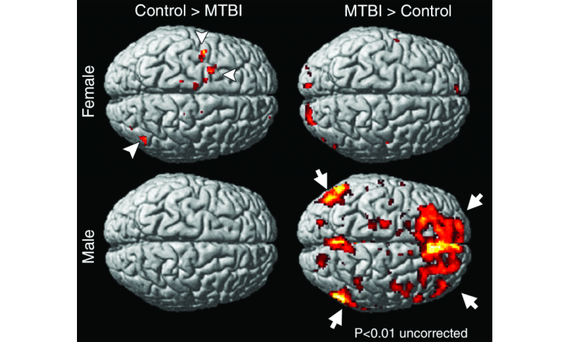 Women show persistent memory impairment after concussion