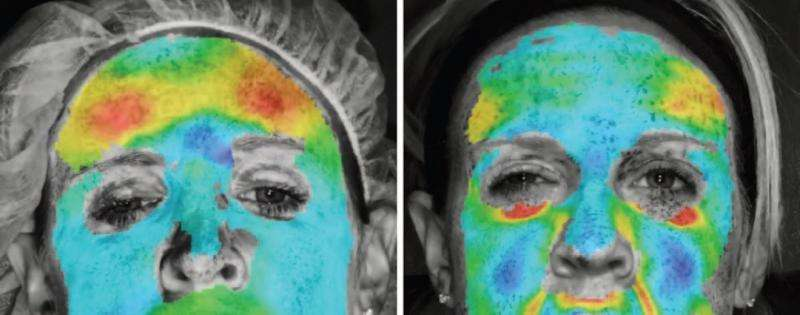 Study reveals novel use of 3-D imaging for measurement of injectable wrinkle reducers