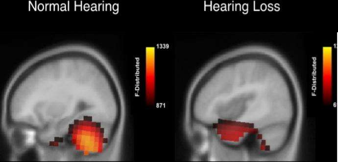 How does the brain respond to hearing loss?