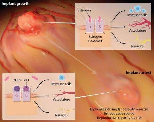 New drug compounds show promise against endometriosis