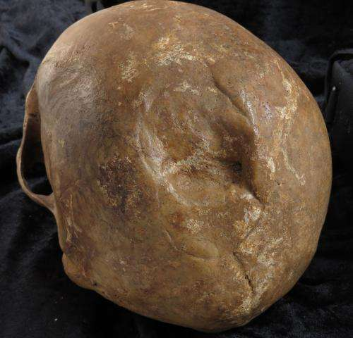 Analysis of skull fractures in medieval Denmark reveals increased risk of death later on in life