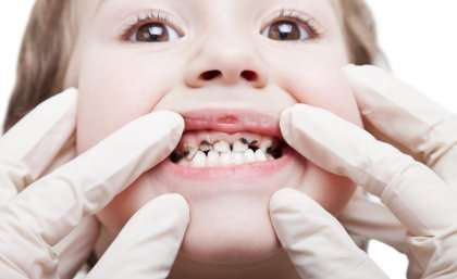 Study shows benefits of fluoride to children