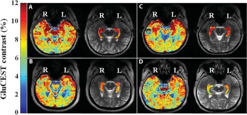 Penn researchers: New neuroimaging method better identifies epileptic lesions