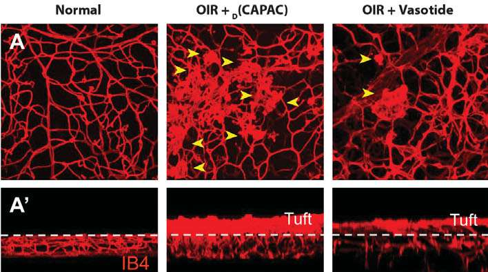 New drug candidate is promising therapeutic option for angiogenic retinal diseases