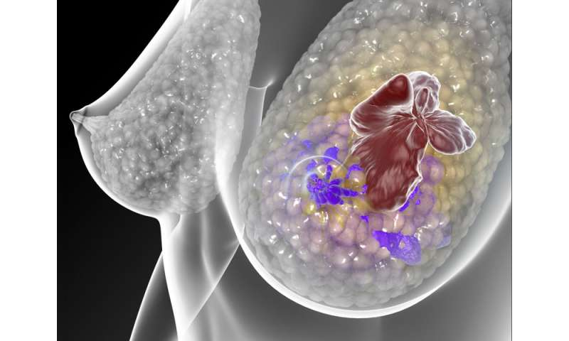 Blood test detects when hormone treatment for breast cancer stops working