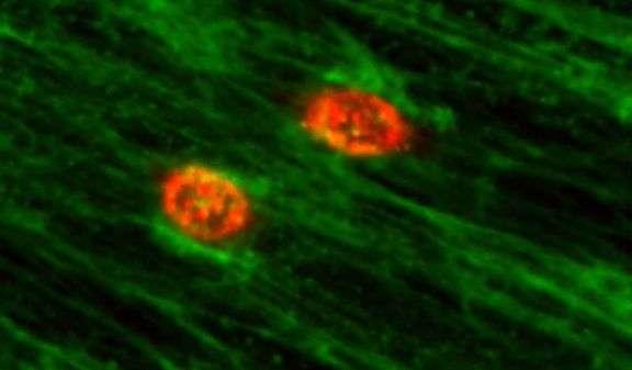 Cancer cell collaborators smooth the way for cancer cells to metastasize