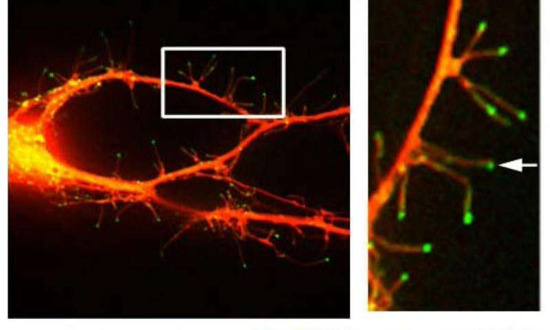 New insight into how brain makes memories
