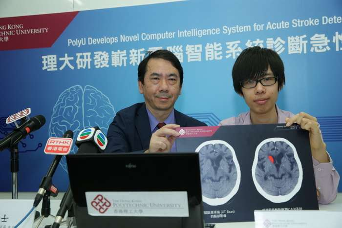 Researchers develop novel computer intelligence system for acute stroke detection