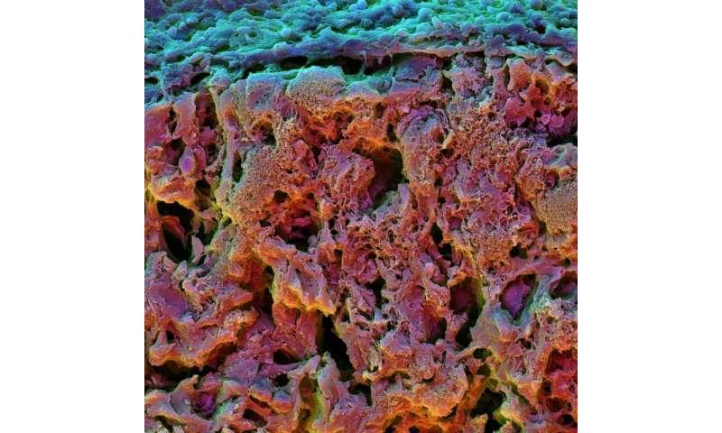 A better way to grow bone cells
