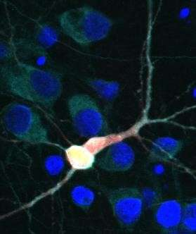 Scientists identify new drug target to treat ALS