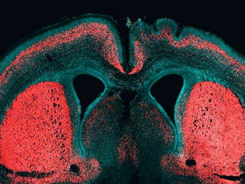 A gene for brain size only found in humans