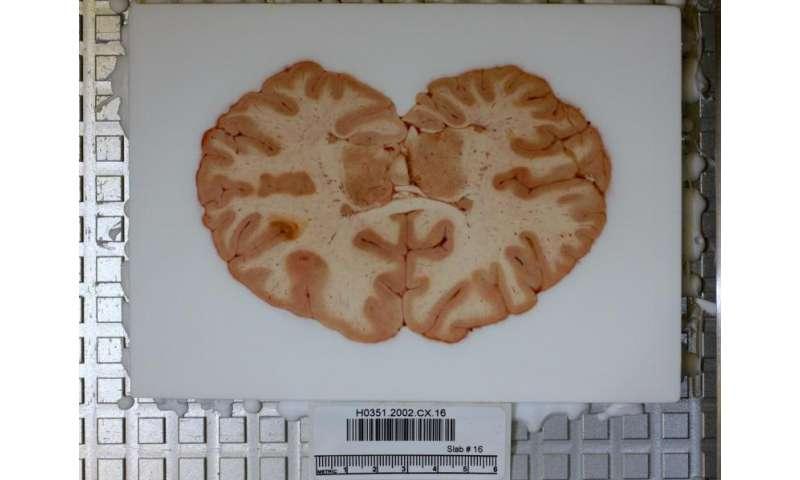 Allen Institute researchers decode patterns that make our brains human