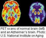 <i>APOE</i> allele linked to severity of alzheimer's disease
