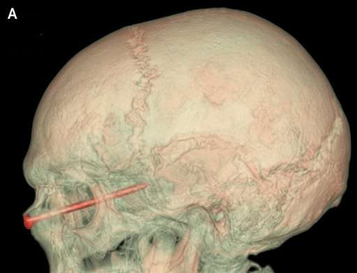 A nail in the eye, a lucky landscaper left without a scratch