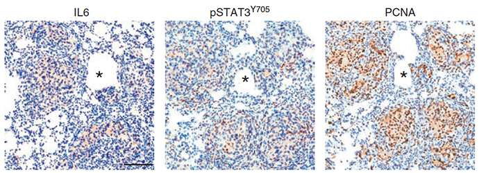 An immune system marker for therapy-resistant prostate cancer