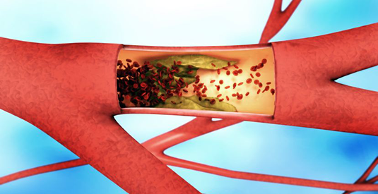 Arterial thrombosis: Cloaking of collagen frees up the flow