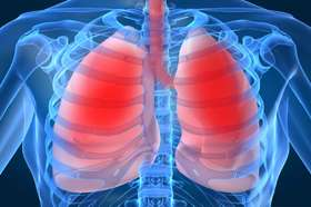 ASTRO issues guideline on definitive and adjuvant RT for locally advanced non-small cell lung cancer