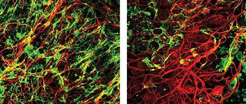 A supplement for myelin regeneration