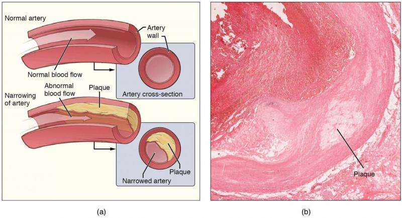 Protein regulating inflammation in atherosclerosis identified thumbnail