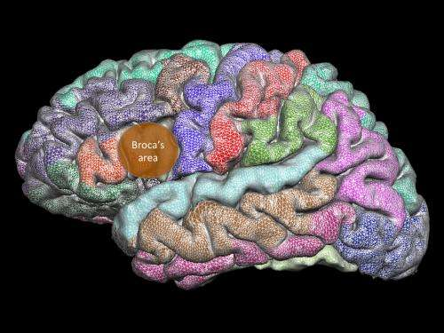Brain develops abnormally over lifespan of people who stutter