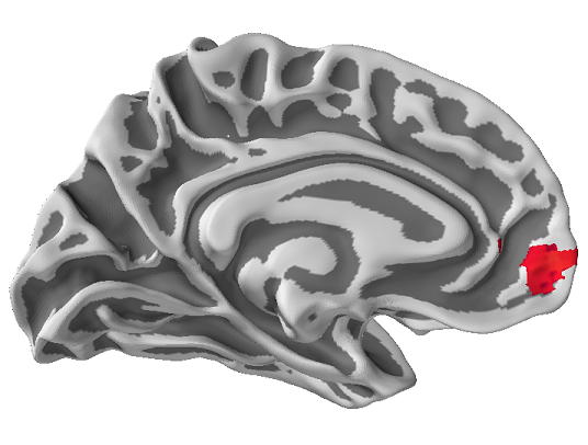 Brain imaging can predict the success of large public health campaigns