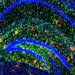 Brain's ability to dispose of key Alzheimer's protein drops dramatically with age
