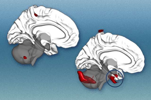 Brain scans can predict the success of treatment for social anxiety disorder
