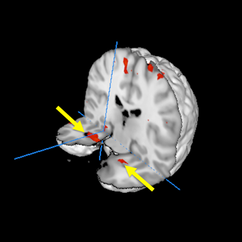 Brain scans of passengers who experienced nightmare flight