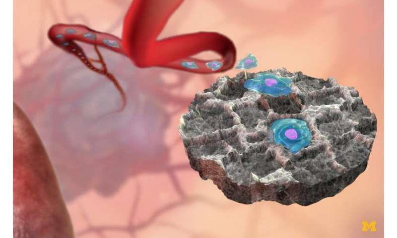 Cancer decoy could attract, capture malignant cells