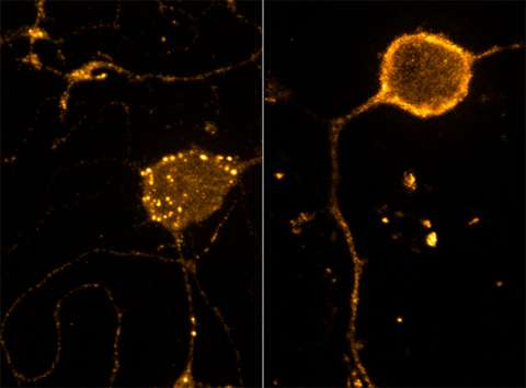 Cellular signals for pain fine tune neurons' sensitivity to opiods