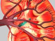 Central venous pressure-guided hydration beneficial in CKD, CHF