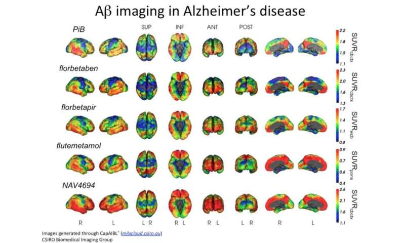 Cloud-based neuroimaging analysis could aid Alzheimer's diagnosis