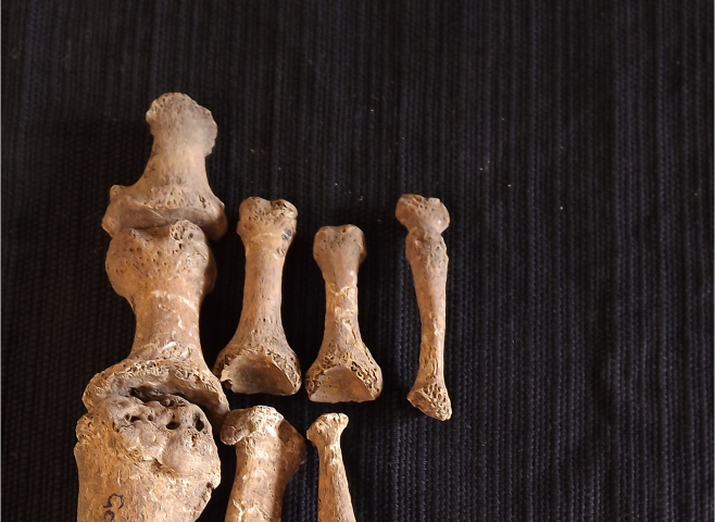Clues revealed about an ancient case of leprosy